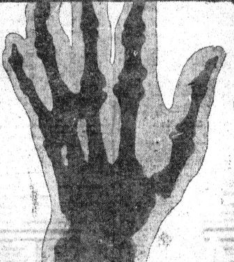 Deacon_McGuire_hand_x-ray
